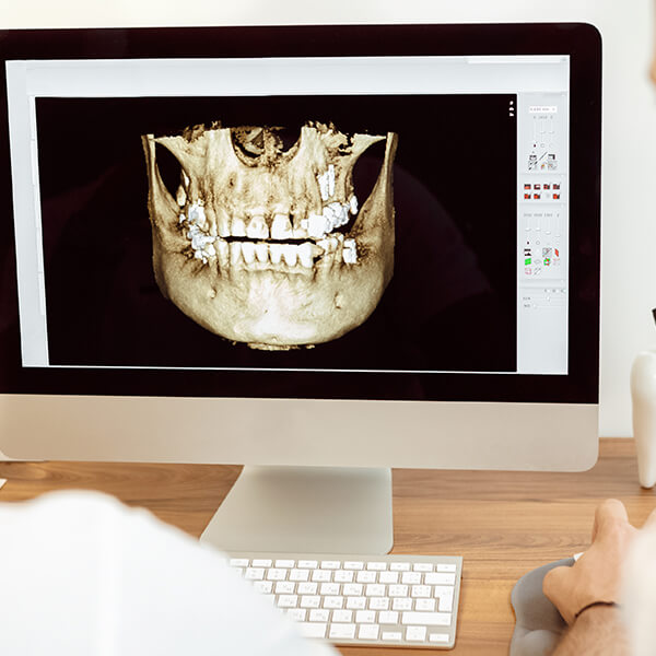 Doctors reviewing a digital x-ray on a computer