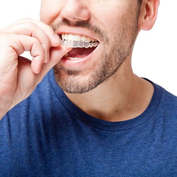 A young man putting an invisalign on his mouth